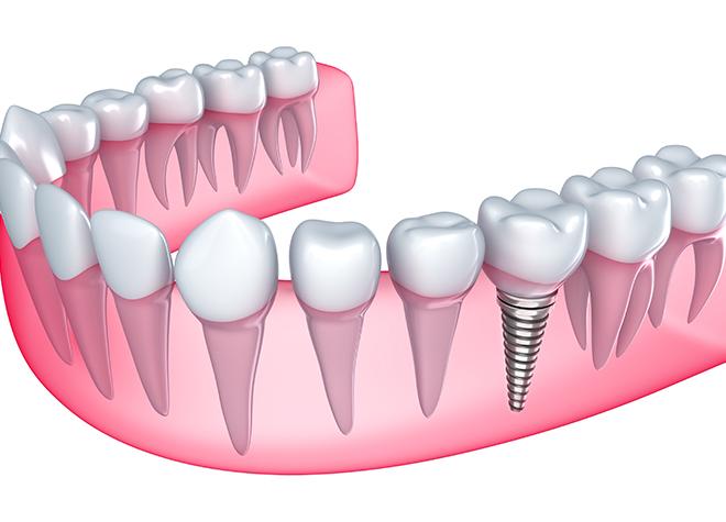 天然歯に近い感覚で噛むことのできるインプラントを、患者さまの不安に配慮して提供いたします。