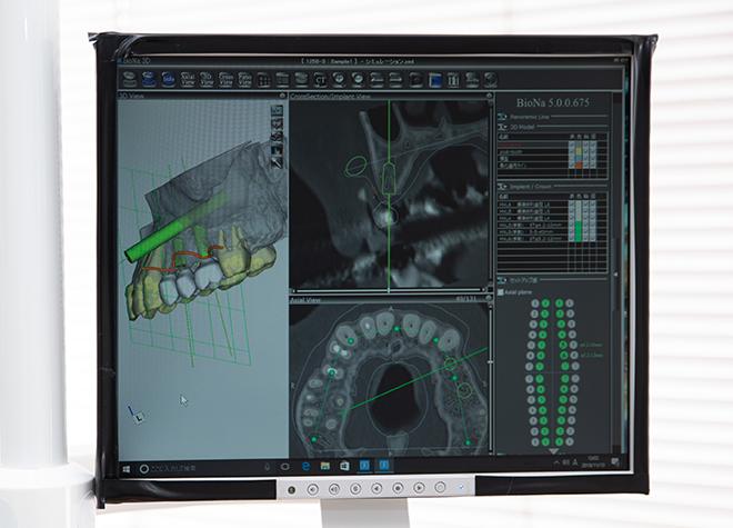 インプラント治療のシミュレーション!サージカルガイドを用いて、神経・血管を傷つけずに手術を行います