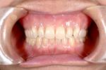 上顎のみ総入れ歯