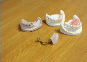患者さんがよりよい生活ができるよう、入れ歯のメリットをご紹介しております。
