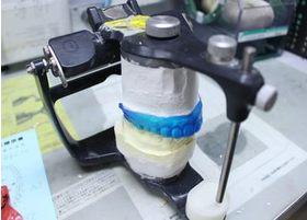 咬合器を使いながらプレス作業を繰り返し、その後調整を施してマウスピースを製作します。