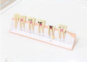 歯周病には定期的なメンテナンスをおすすめします