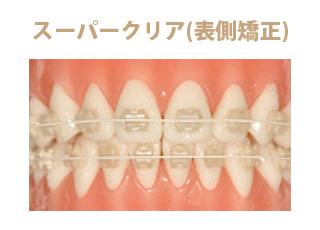 葵デンタルデザインオフィス_矯正歯科