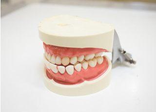 トレッサファミリー歯科_入れ歯・義歯3
