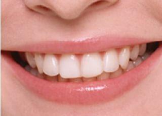 都南歯科医院_美容診療2