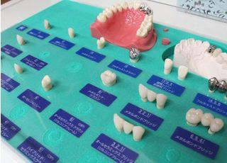 黒住歯科 花尻診療所_つめ物・かぶせ物4