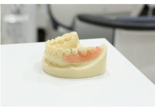 スマイル歯科・矯正歯科クリニック_入れ歯・義歯2