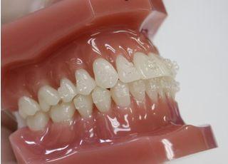 川畑歯科医院_目立ちにくい矯正器具を使います。