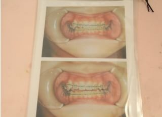 大島歯科クリニック_矯正歯科4
