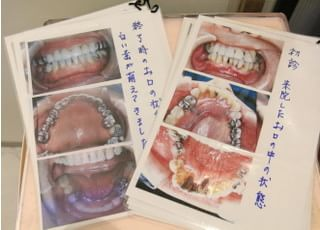 大島歯科クリニック_治療の事前説明2