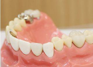 医療法人社団 KIDC KI歯科・矯正歯科 平井 つめ物・かぶせ物