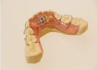 牛込歯科_歯並びをきれいにすることが健康への第一歩です