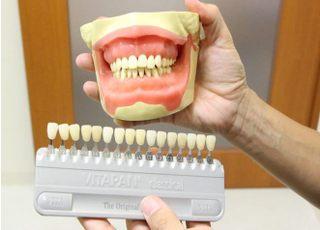 あきた歯科クリニック_つめ物・かぶせ物3