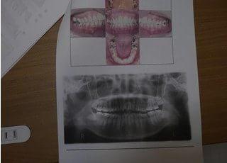 あきた歯科クリニック被せ物・詰め物3