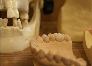 岡部歯科クリニック_つめ物・かぶせ物3