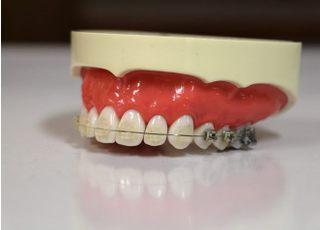 わかば矯正歯科クリニック(熊本市中央区)_矯正歯科1