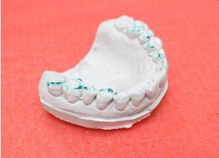 ひかり歯科クリニック 摂津院 入れ歯・義歯