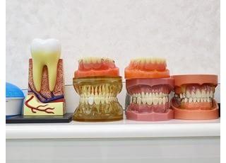 すみ歯科_義歯のご相談