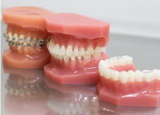 はしもと歯科クリニック_矯正歯科3