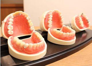 太田歯科医院_入れ歯・義歯について