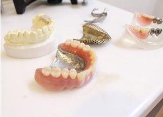 ちはら歯科クリニック_入れ歯・義歯4