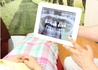 今井歯科クリニック_治療の事前説明3