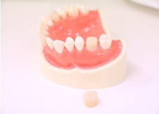 今井歯科クリニック_被せ物・詰め物4