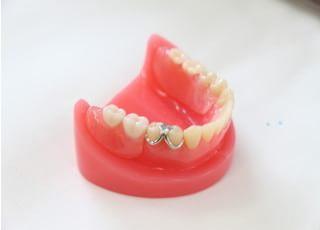 宇治川歯科石川診療所 入れ歯・義歯