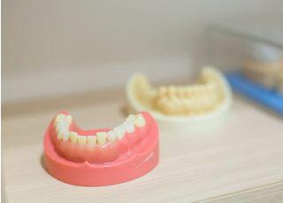 おおみち歯科クリニック_入れ歯・義歯4