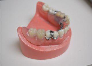 ふくざわ歯科_入れ歯・義歯4