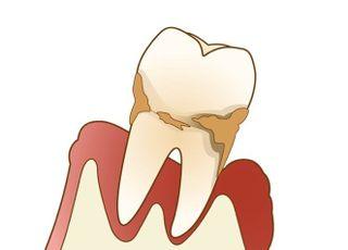 出口歯科医院_歯周病2