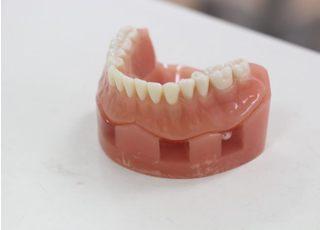 らいおん歯科クリニック 手広医院_入れ歯・義歯4