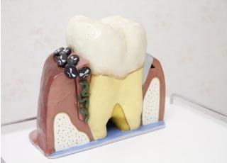 門坂歯科医院 歯周病