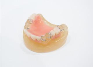 シイヤ歯科_入れ歯・義歯3