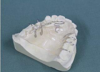 みはし歯科医院床矯正4