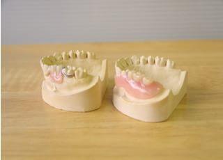深川歯科医院_入れ歯・義歯4
