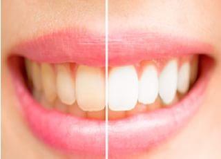小鳥沢歯科クリニックホワイトニング2