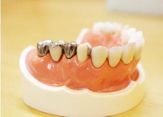 ともえ歯科_つめ物・かぶせ物4