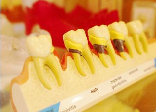 ともえ歯科_歯周病2