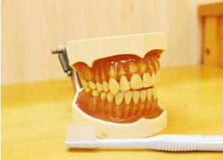 ともえ歯科_予防歯科1