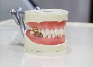 はなだ歯科医院_つめ物・かぶせ物2