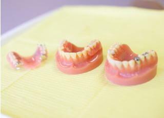 けやき歯科入れ歯・義歯4