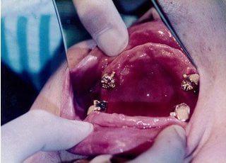 治療の様子です。他の歯医者で抜かないといけないと言われた2本の歯を残して、丈夫な義歯を作成します(保険適用外)。
