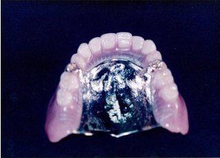 この義歯で綺麗に致します(保険適用外)。