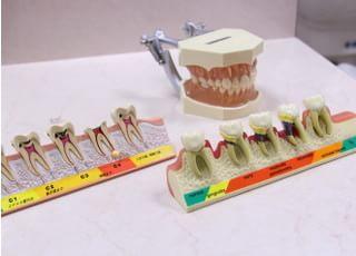 歯の模型です、視覚的にわかりやすいよう説明しています