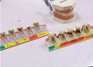 松本歯科医院治療の事前説明3