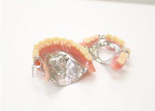 五條歯科医院 第二診療所_入れ歯・義歯4