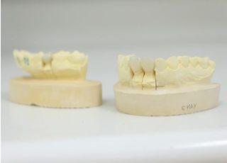 中森歯科医院_被せ物・詰め物4