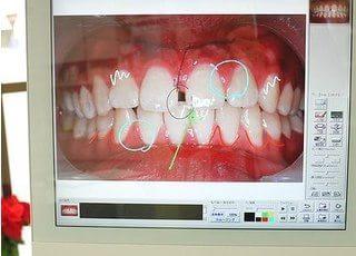 現在どのような治療をしているのか?治療によって口腔内はどう変わったのか?といった説明や、これから行なう治療についての説明を、コンピュータ画面を使ったビジュアルでやさしく説明します。ご希望の方にはプリントアウトしてお持ち帰りしていただけます。