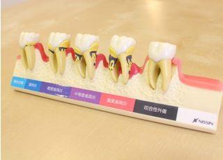 ひがしの歯科医院_治療の事前説明3